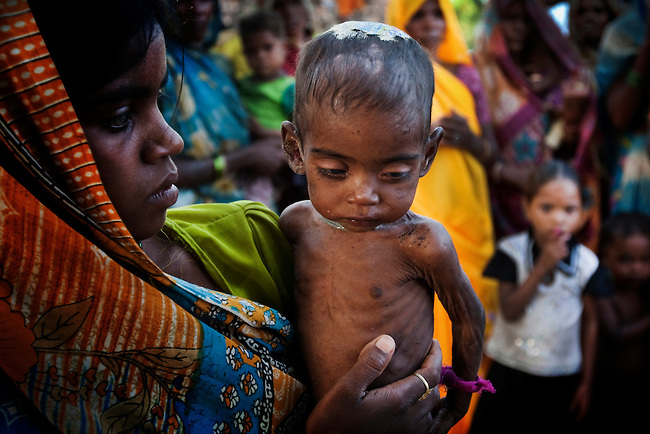 20 year old Jhanki shows off her malnourished and wasting 9 month old baby girl Roshini in Silanagar village outside Shivpuri, Madhya Pradesh state in India. Despite 15 yeas of economic growth the incidence of child malnutrition has barely changed -- 46 percent of children under 5 in India are malnourished: twice the rate of sub Saharan Africa.  A report released last week said a mixture of poor governance , the caste system dis-empowerment of women and superstition are preventing children from getting the nutrition they need, condemning another generation to brain damage, low earning potential and early death. At the moment 3000 children a day die in India as a result of malnutrition.