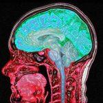 Derin uykunun beyindeki nörodejeneratif hastalıklar üzerindeki etkisi bulundu